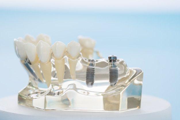 Izgled providne vilice sa ugrađenim implantima