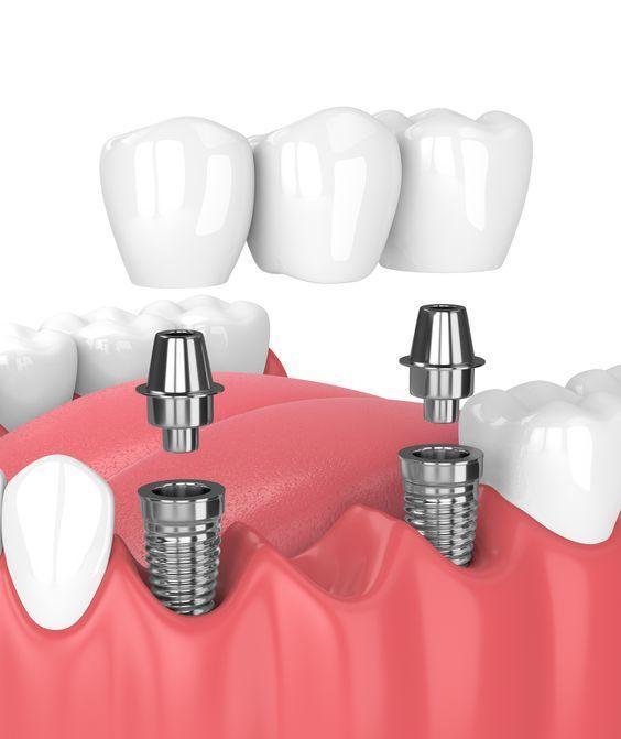 Ilustracija procesa instalacije implanta