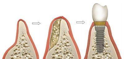 Ilustracija ugradnje zubnog implanta u kost vilice