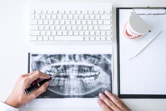 Slika rendgenskog snimka vilice i zubara koji je pregleda