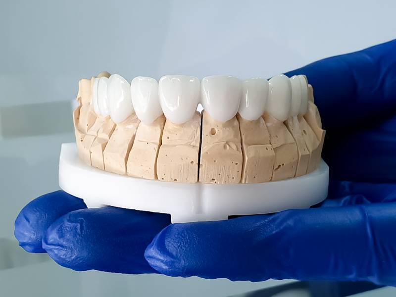 Slika cirkon-keramičkih navlaka na stalku koje drži zubar u ruci koja je u plavoj rukavici