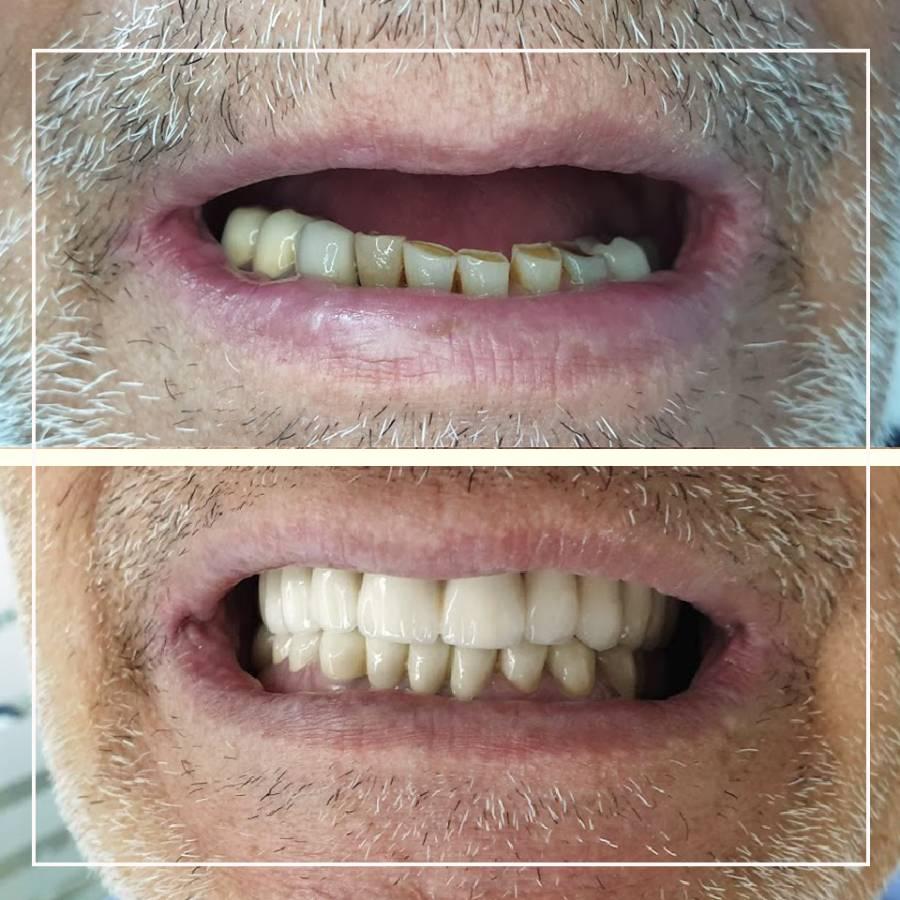 Slika čovekovog osmeha pre i posle ugradnje metalno-keramičkih krunica