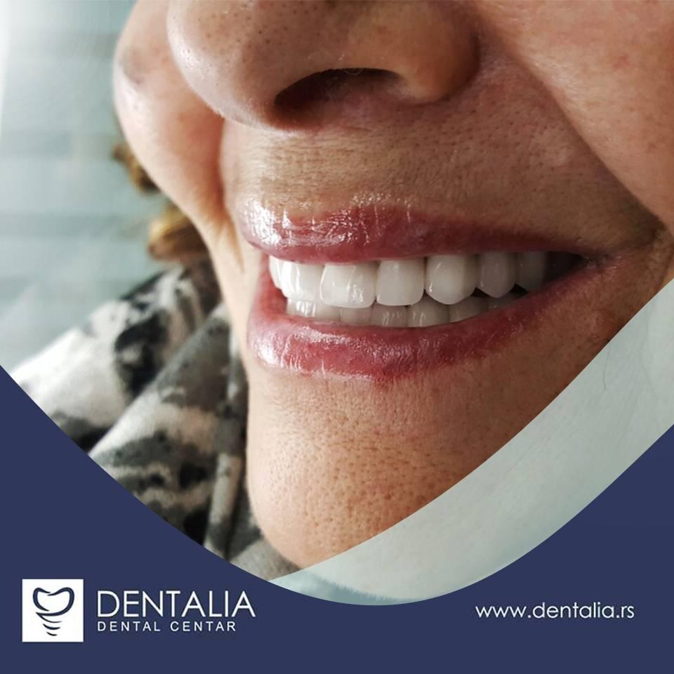 Slika žene kako se smeje sa blistavo belim zubima