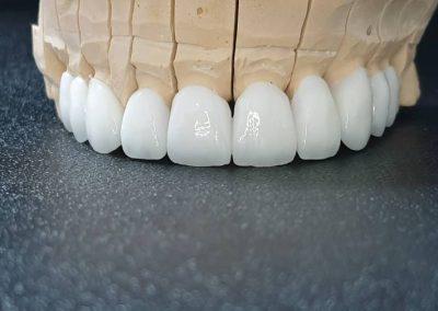 Slika navlaka za zube kornje vilice sa prednje strane