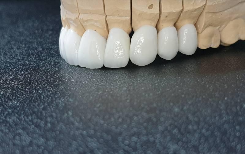 Slika navlaka za zube kornje vilice sa leve strane