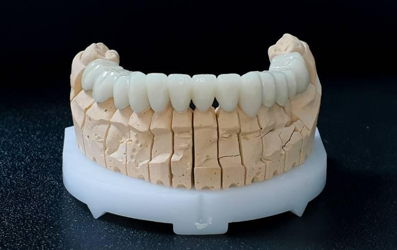 Slika navlaka za zube donje vilice sa prednje strane