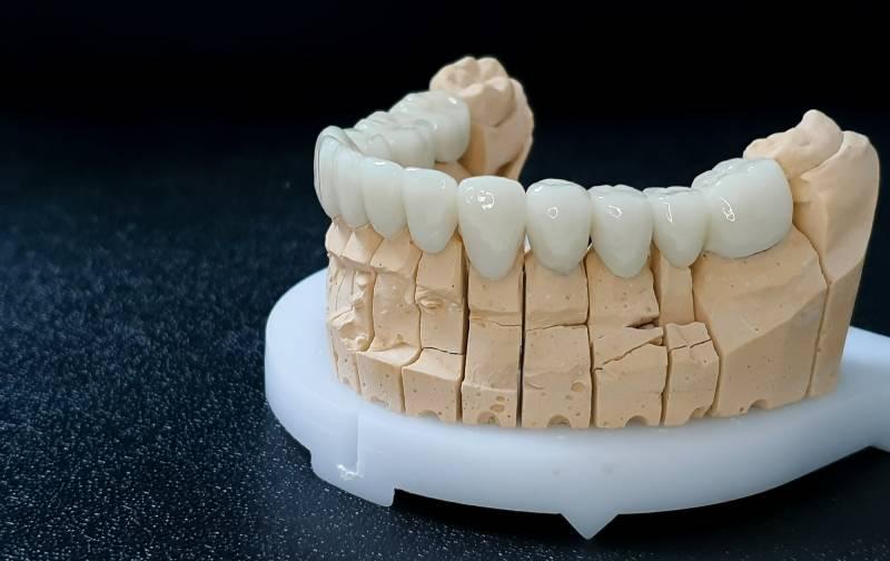 Slika navlaka za zube donje vilice sa leve strane