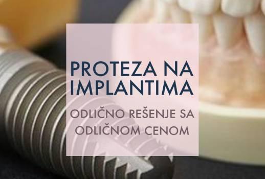 Slika proteze na implantima sa dodatnim informacijama oko izrade u stomatološkoj ordinaciji Dentalia