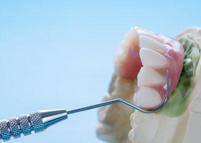 Slika postavljene vilice na implantima