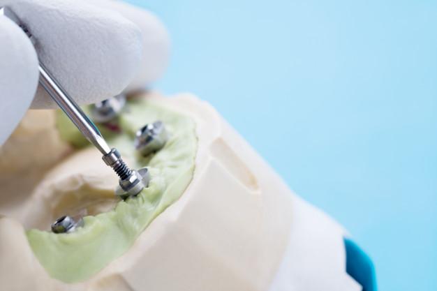 Slika postavljanja zubnih implanta i kopči u vilicu