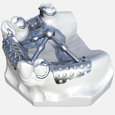 Slika vizil proteze
