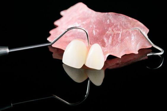 Slika izgleda žabice za zube