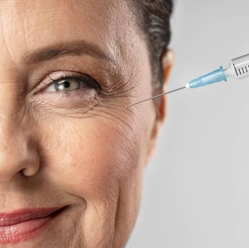 Starija žena na tretmanu hijalurumskih filera