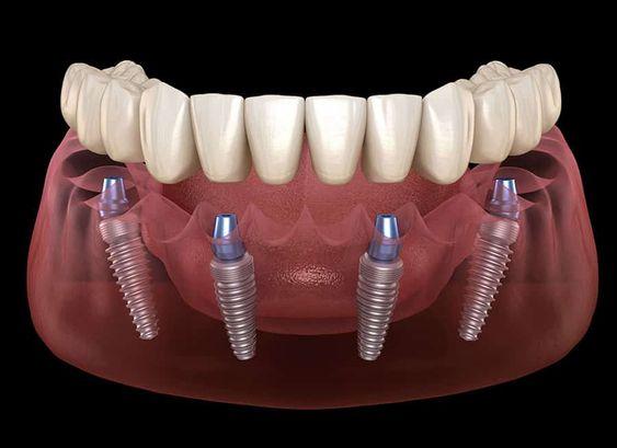 Ilustracija donje vilice sa ugrađena 4 implanta