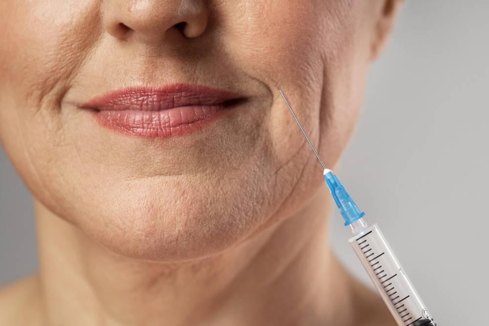 Starija gospođa na tretmanu povećanja usana hijaluronskim filerom
