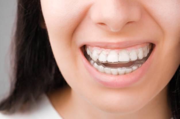 Devojka koja nosi silikonsku protezu i smeje se