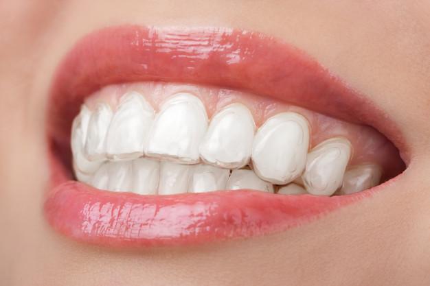 Blistavo beli ženski osmeh sa silikonskom protezom