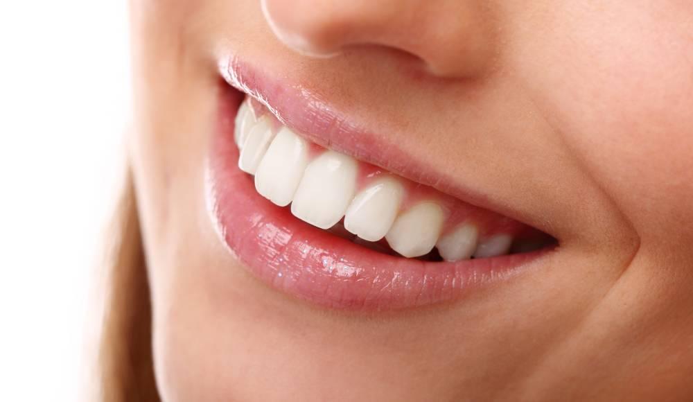 Blistavo beli ženski osmeh koji je takav zbog plombi