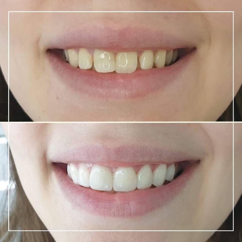 Slika osmeha devojke pre i posle ugradnje keramičkih vinira