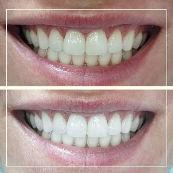 Slika osmeha pre i posle izbeljivanja zuba