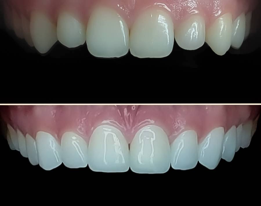Slika zuba pre i posle keramičkih vinira