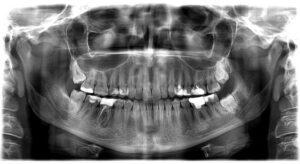 Ilustracija rendgenskog snimka gde se sa leve strane vide 4 zuba i tamno polje oko zuba u sredini, dok je sa desne strane prikaz istih zuba gde nema više tamnog polja, ali se vidi da je taj zub u sredini malo kraći.