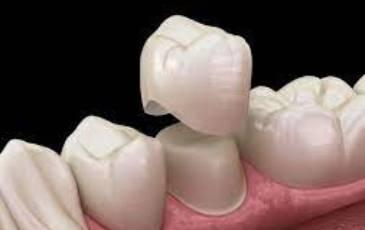 Cementiranje zubnih navlaka