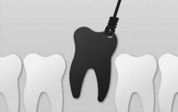 Obično, komplikovano i hirurško vađenje zuba