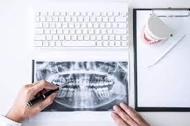 prikaz radnog stola gde se nalazi tastatura, snimak zuba na koji hemijskom pokazuju ruke doktora, model zuba i beli papir