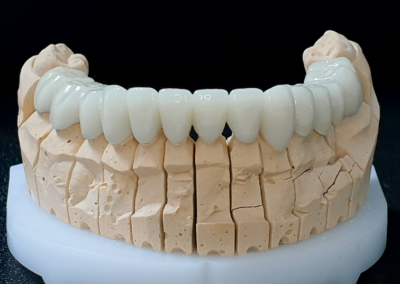Prikaz-modela-donjih-zuba-od-gipsa-na-kome-se-vide-cirkon-keramicke-krune-navlake
