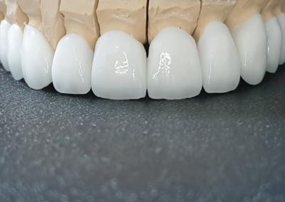 Prikaz-modela-gornjih-zuba-od-gipsa-na-kome-se-vide-cirkon-keramicke-krune-navlake