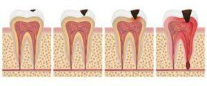 ilustracija zuba koji na sebi imaju karijes